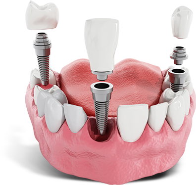 dental implants model West Palm Beach, FL