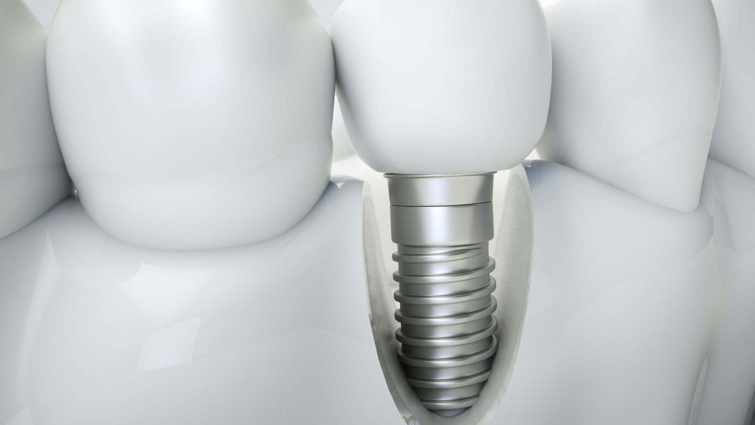 bone grafting for dental implant West Palm Beach, FL