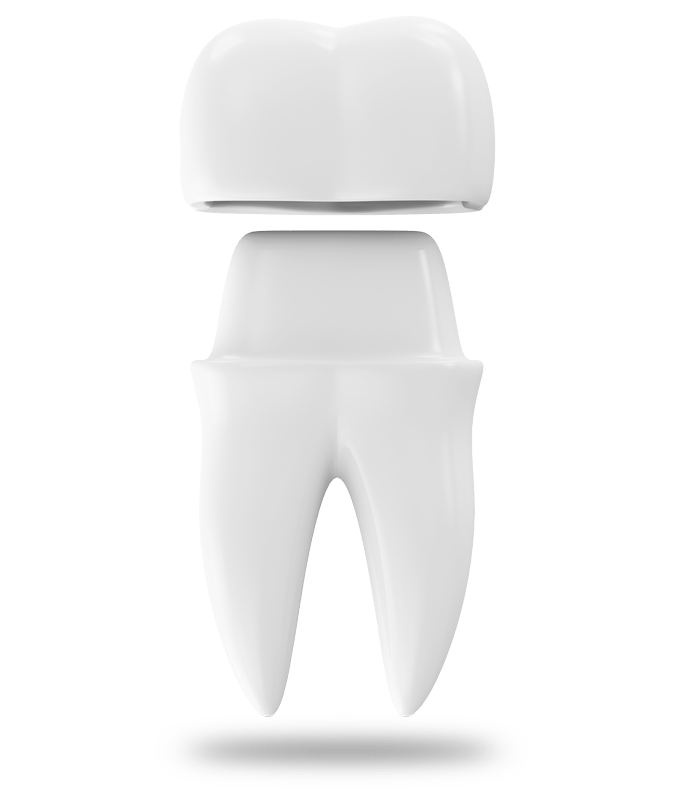 dental crown model West Palm Beach, FL
