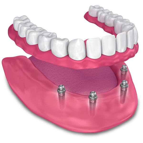 implant supported dentures model West Palm Beach, FL